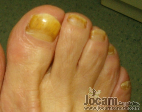 Toe Fungus Shoe Spray